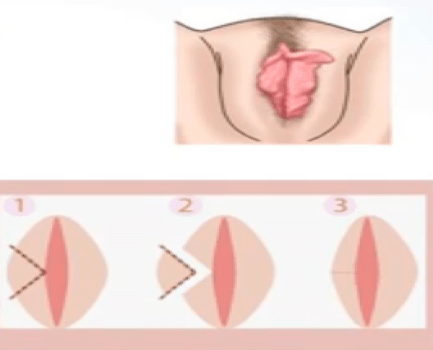 Клиновидная лабиопластика