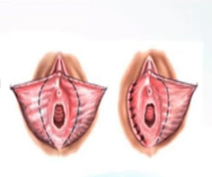 Линейная лабиопластика