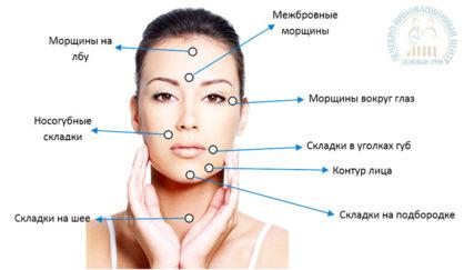 zony vvedeniya mezonitej v klinike lic