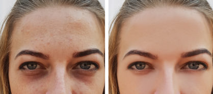 mezoterapiya lica do i posle foto